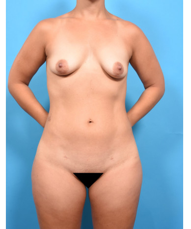 VASER 4D Lipo Of The Abdomen, Flanks, Inner And Outer Thighs, Fat Transfer To The Buttocks And Hips