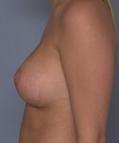 dangers of saline breast implants