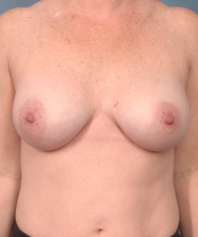 Congratulate, Deflated saline breast for