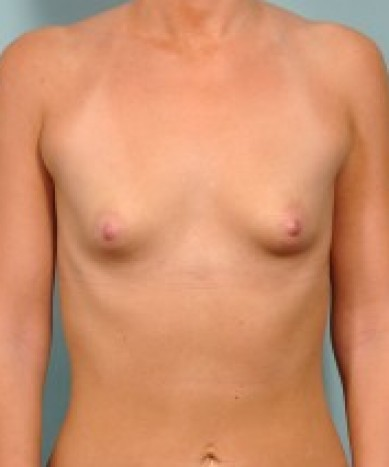 Breast Augmentation with Anatomic Silicone Implants