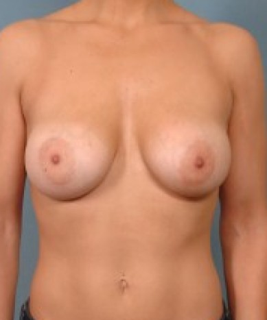 Breast Enhancement with Silicone Round Implants
