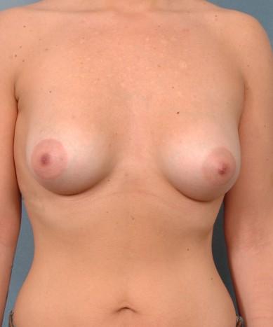 "Breast enhancement with silicone – Allergan 410 ""Gummy Bear"" implants: Asymmetry and Tubular Breast Deformity"