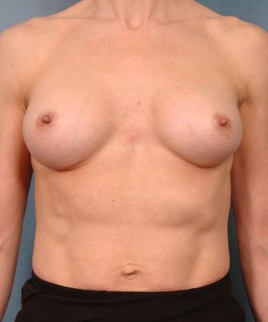 "Breast Enhancement with silicone – Allergan 410 ""Gummy Bear"" implants"